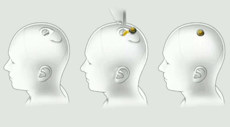 Elon Musk, Neuralink Cihazını Tanıttı İnsan Beynini Bilgisayara Bağlıyor!