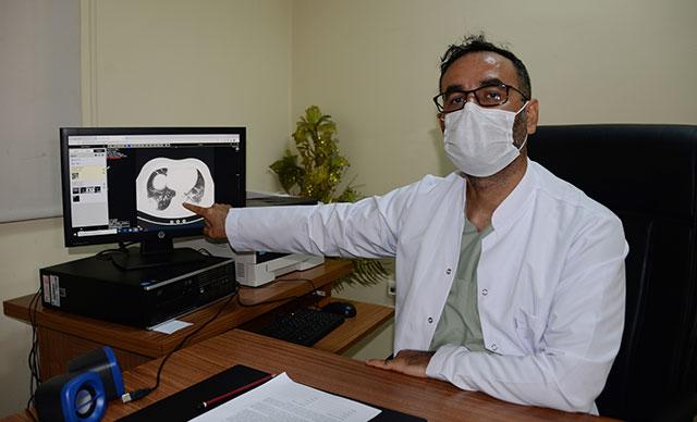 Koronavirüsle Mücadele Eden Doktor Tanık olduklarımı gören biri evden dışarı çıkmazdı